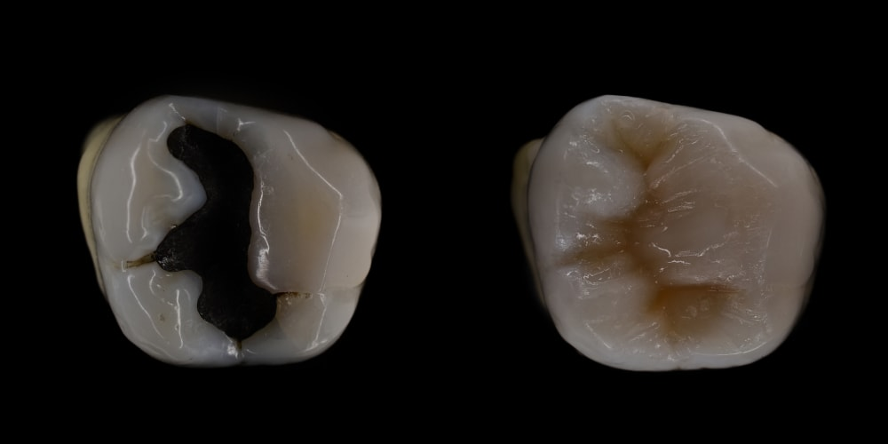 Composite filling on a tooth against a black background