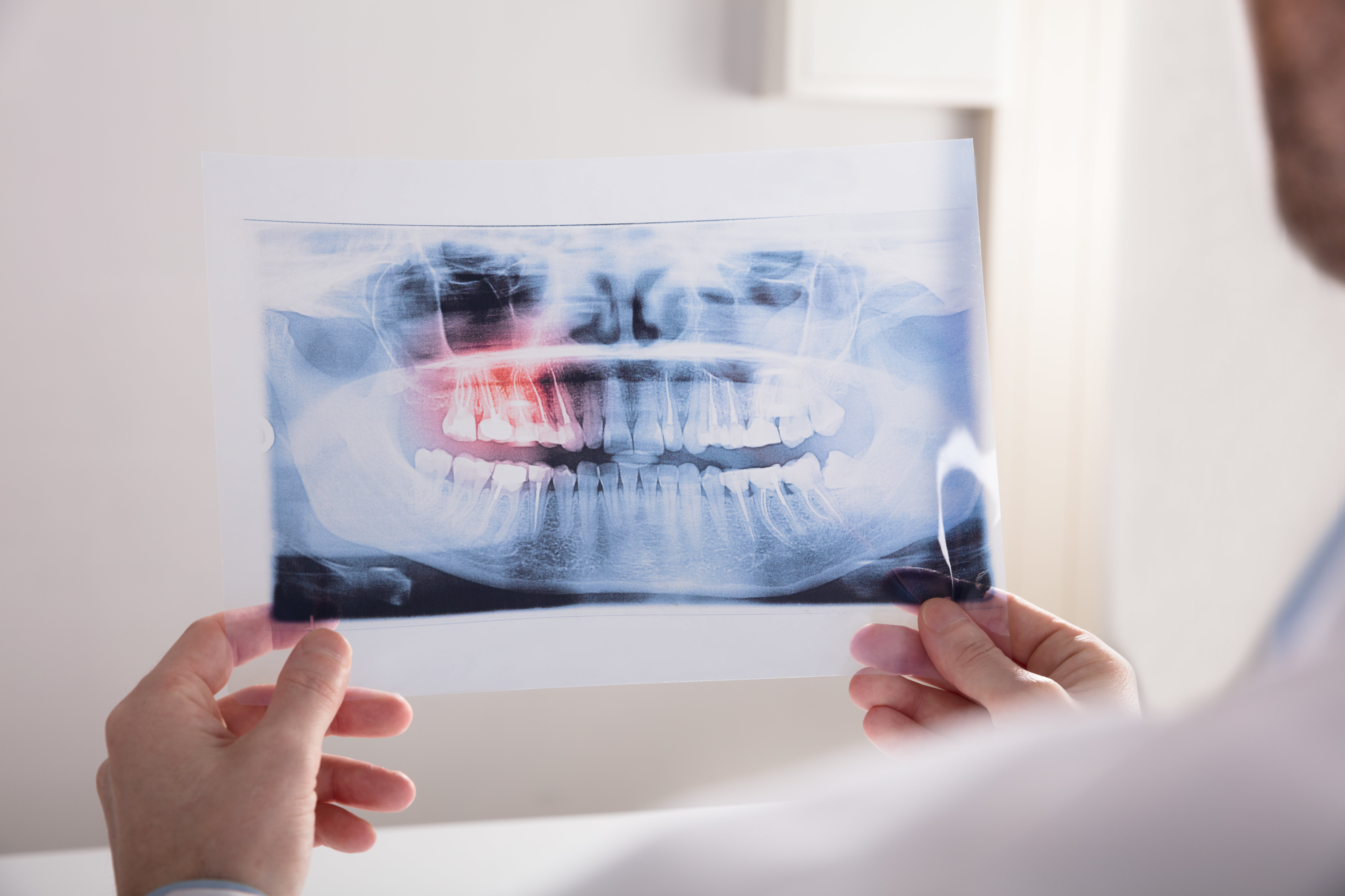 two hands holding a dental x-ray on either side of the x-ray film