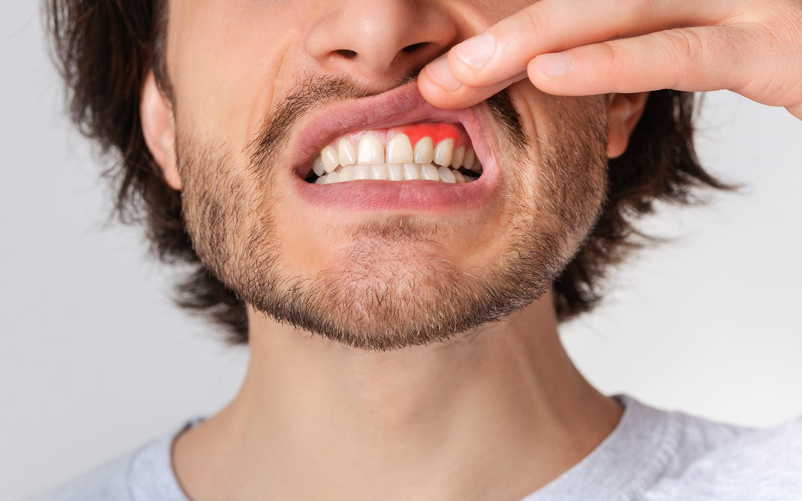 Man revealing gums with periodontal disease